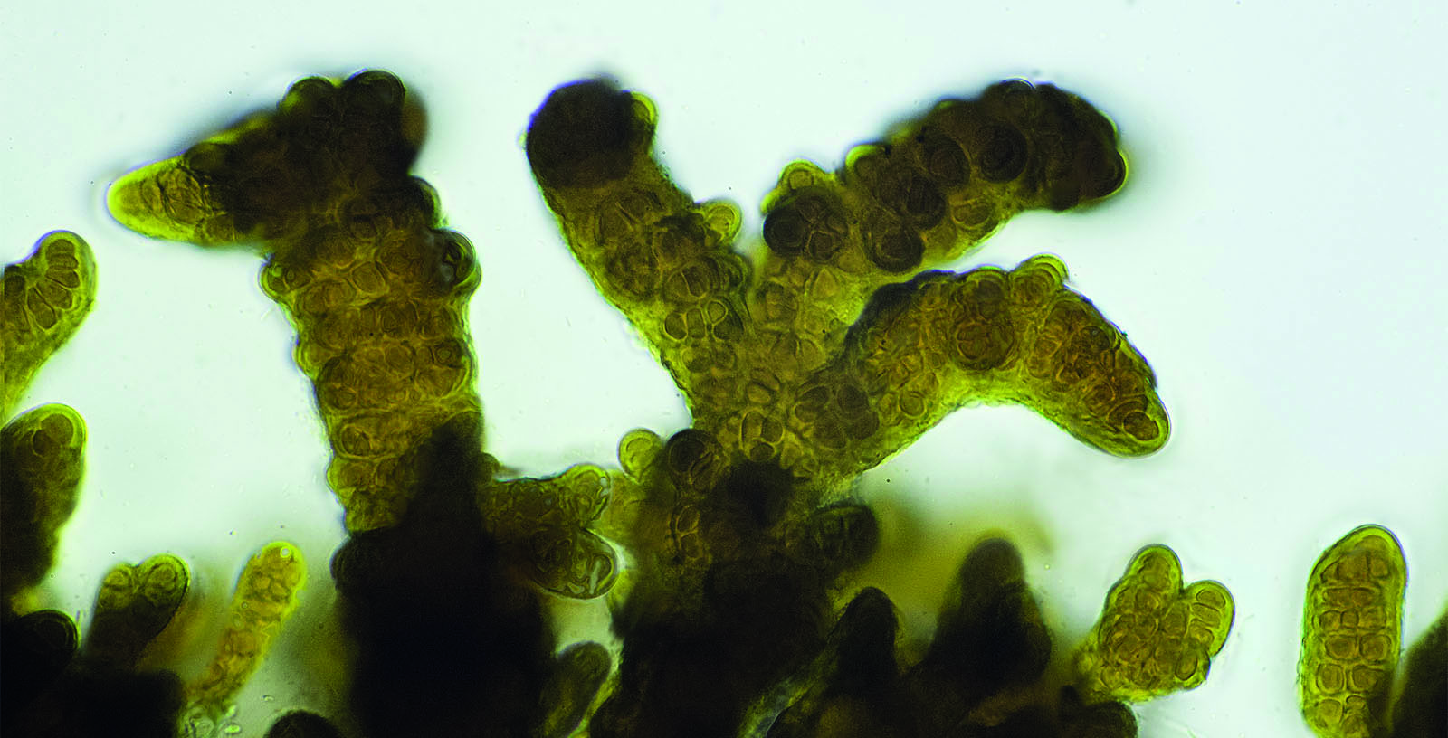 Cyanobacteria. Photo: Flickr, driker